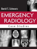 Emergency Radiology: Case Studies Image
