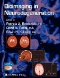 Metallochemistry of Neurodegeneration : Biological, Chemical and Genetic Aspects