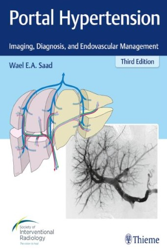 Portal Hypertension : Imaging, Diagnosis, and Endovascular Management