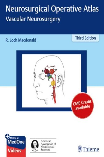 Neurosurgical Operative Atlas: Vascular Neurosurgery