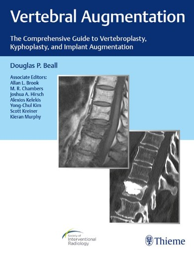 Vertebral Augmentation : The Comprehensive Guide to Vertebroplasty, Kyphoplasty, and Implant Augmentation