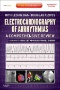 Atlas of Electrocardiography